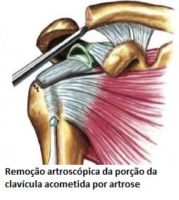 Remoção artrocópica da porç;ao da clavícula acometida por artrose