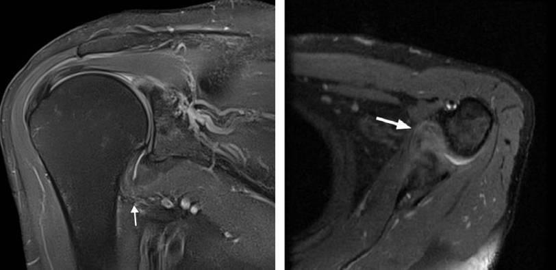 Capsulite adesiva na ressonância magnética