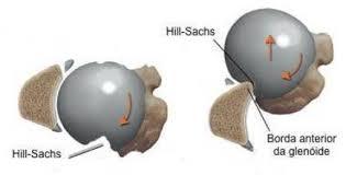 lesão de Hill-Sachs