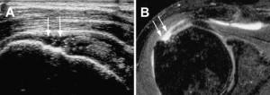 Rotura transfixante do supraespinal visualizada na ultrassonografia (A) e na ressonância magnética (B)